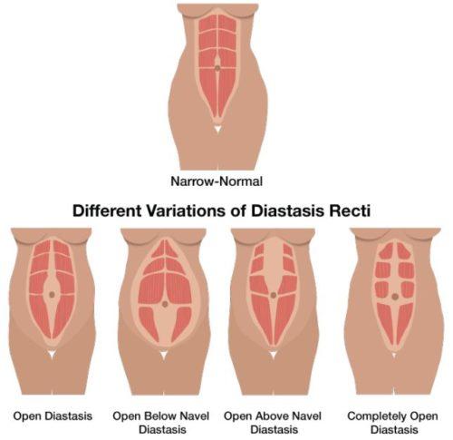Diastasis diagram of different versions