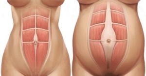How can I lose my big tummy?