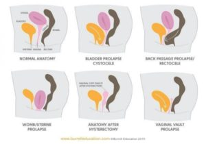 Pictures of different levels of pelvic floor prolapse.